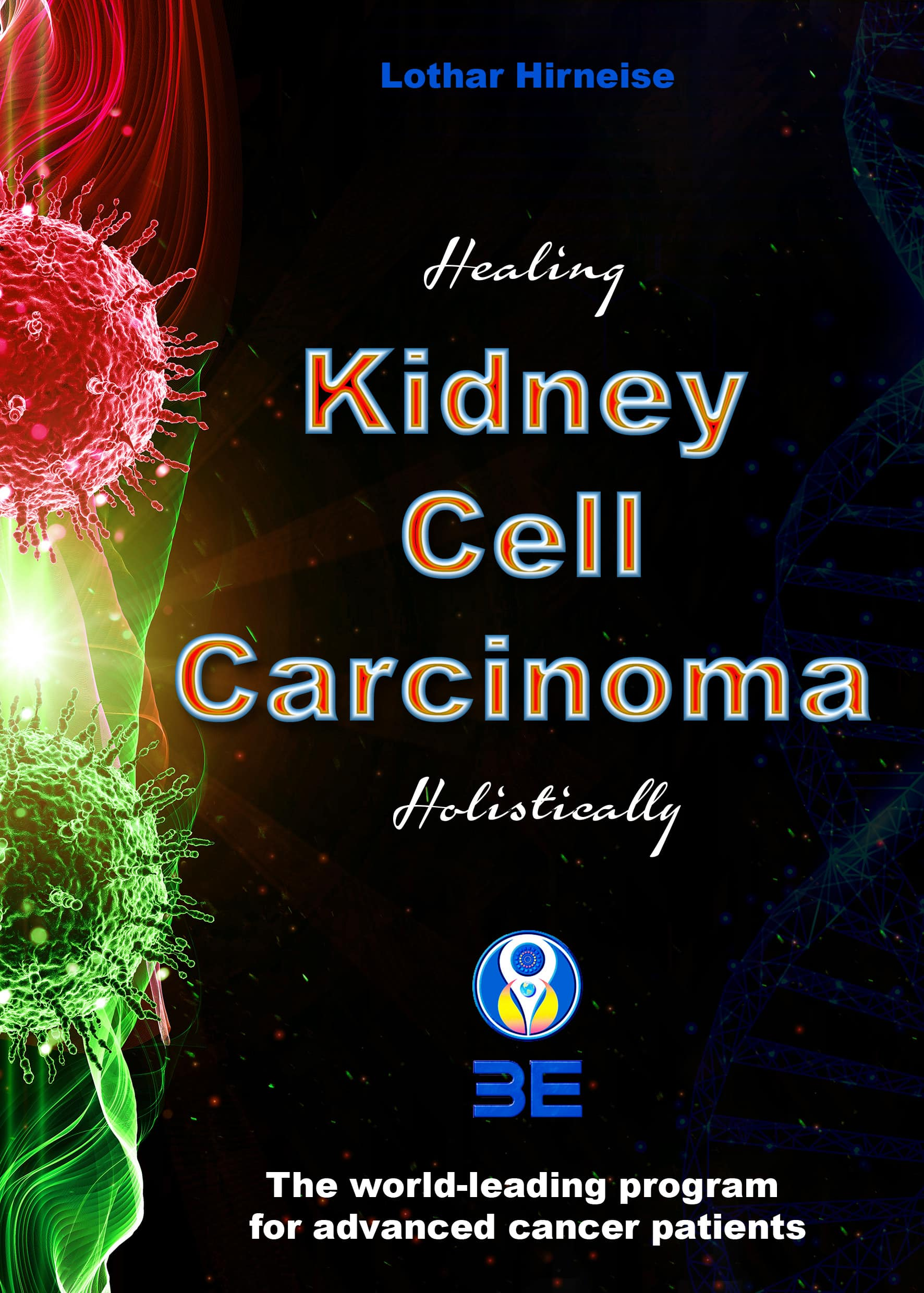 Kidney cell carcinoma